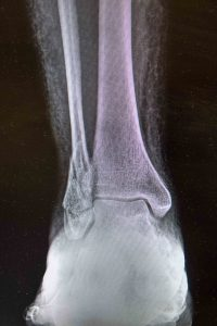 Ankle Pain Ankle Fracture