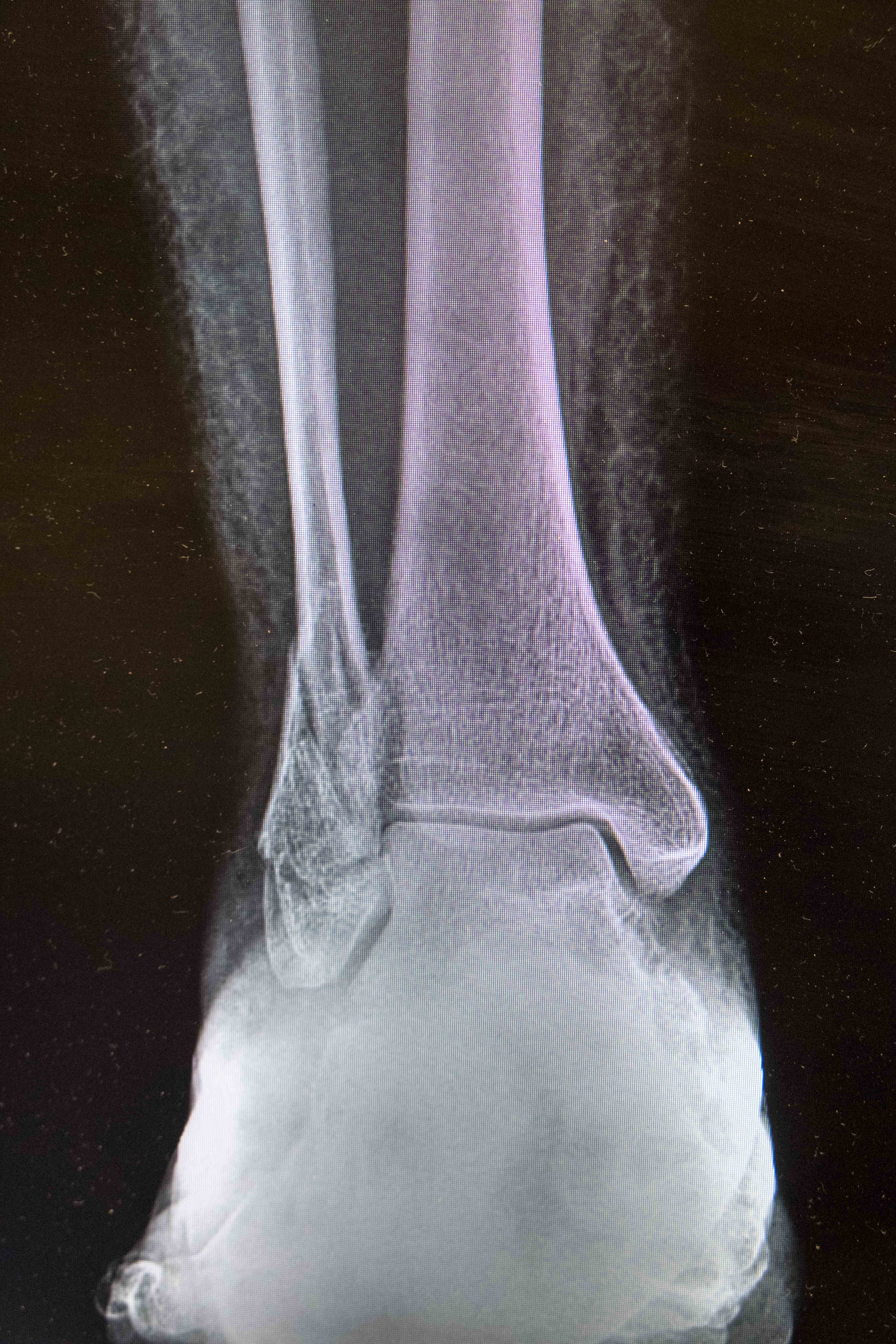 achilles tendon surgery cost without insurance