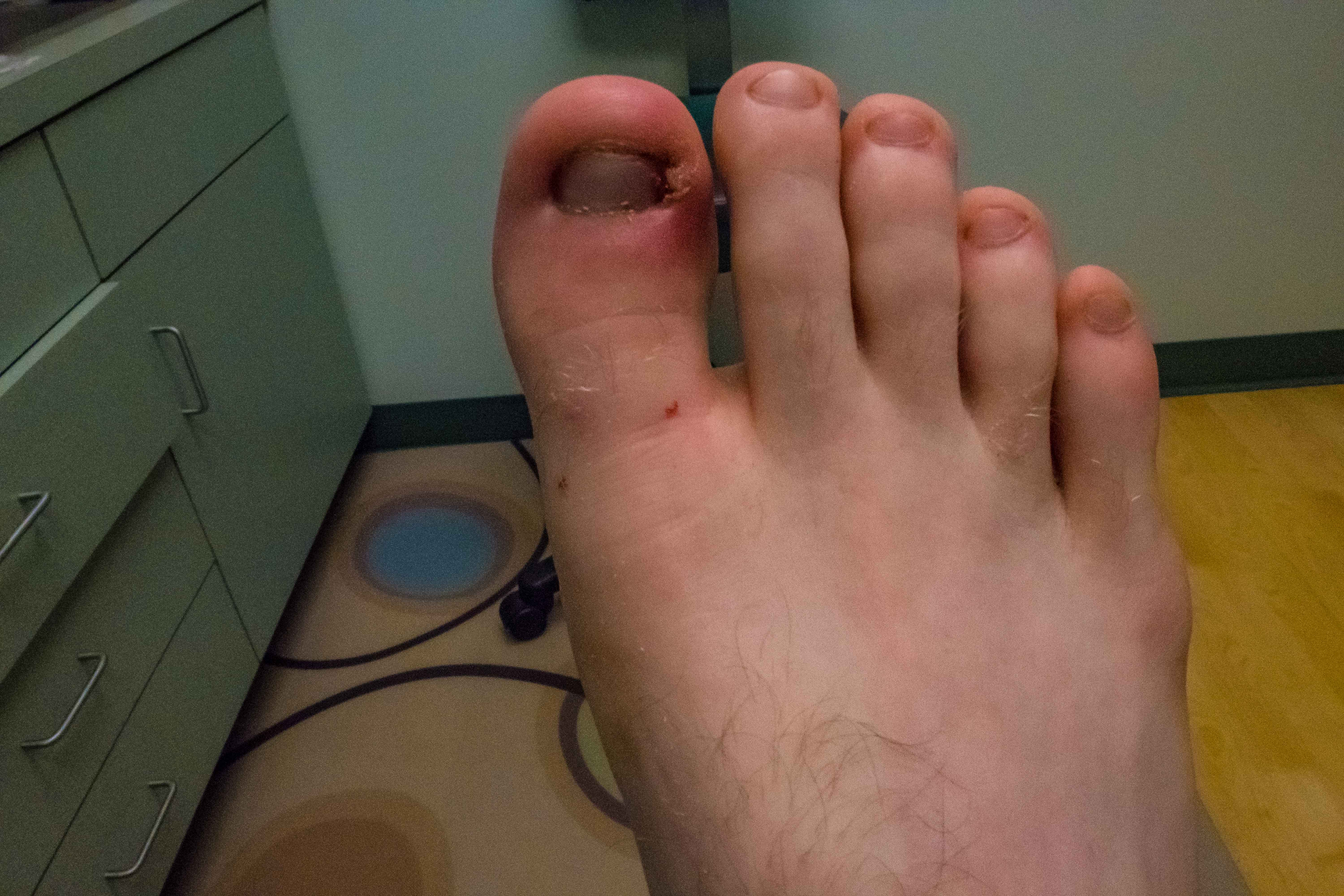 Diabetic Foot Infection Friendly Footcare Inc