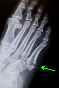 foot fracture injury